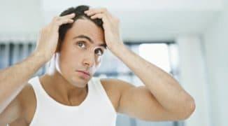 причины облысения у мужчин в 30 лет