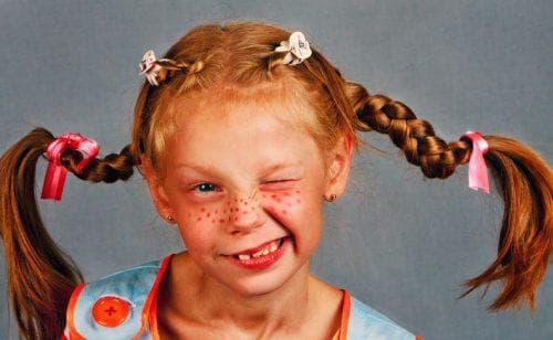 причёска пеппи для девочки